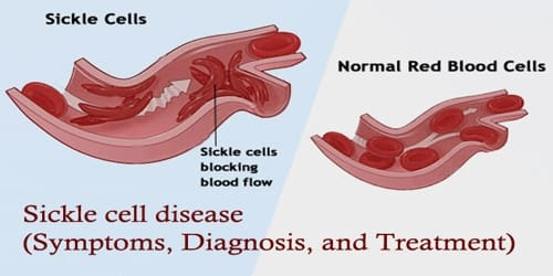 Sickle cell disease (Symptoms, Diagnosis, and Treatment