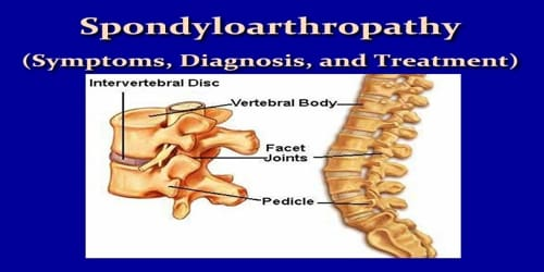 Spondyloarthropathy (Symptoms, Diagnosis, and Treatment)
