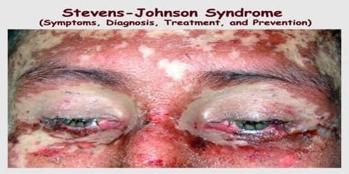 Stevens-Johnson Syndrome (Symptoms, Diagnosis, Treatment, and Prevention)