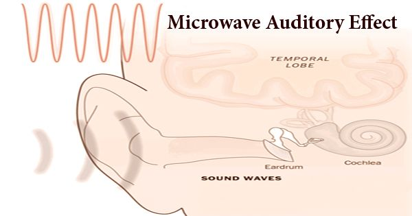 Microwave Auditory Effect