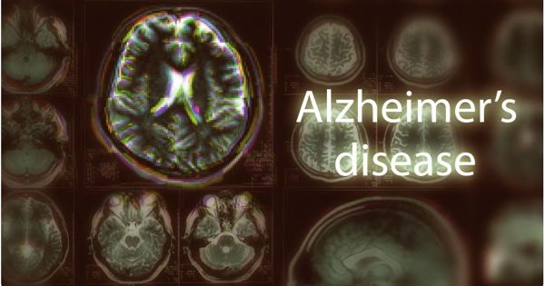 Researchers Suggest a New Treatment Target for Alzheimer's Disease