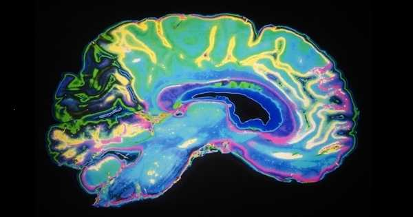 Better Artificial Intelligence can be built by Connecting the Brain