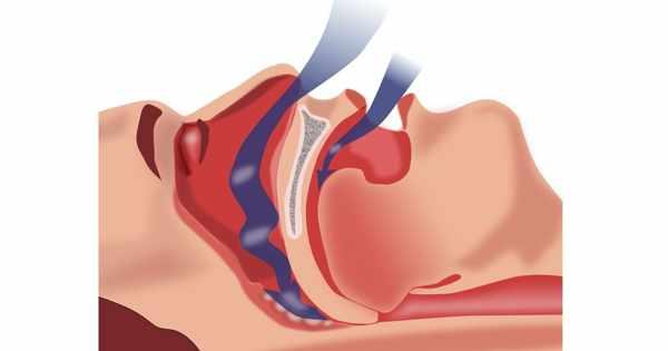 Obstructive Sleep Apnea affects Blood Pressure and Heart Health in Children