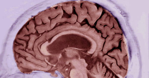 Dementia Test Results are Connected to Changes in Brain Structure